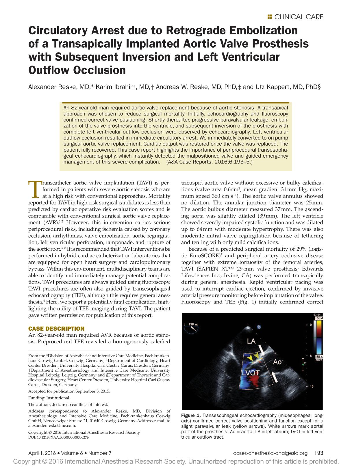 Book cover Circulatory Arrest due to Retrograde Embolization of a Transapically Implanted Aortic Valve Prosthesis with Subsequent Inversion and Left Ventricular Outflow Occlusion