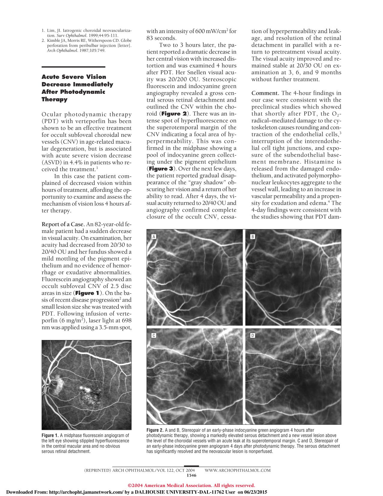 capa de livro Acute Severe Vision Decrease Immediately After Photodynamic Therapy